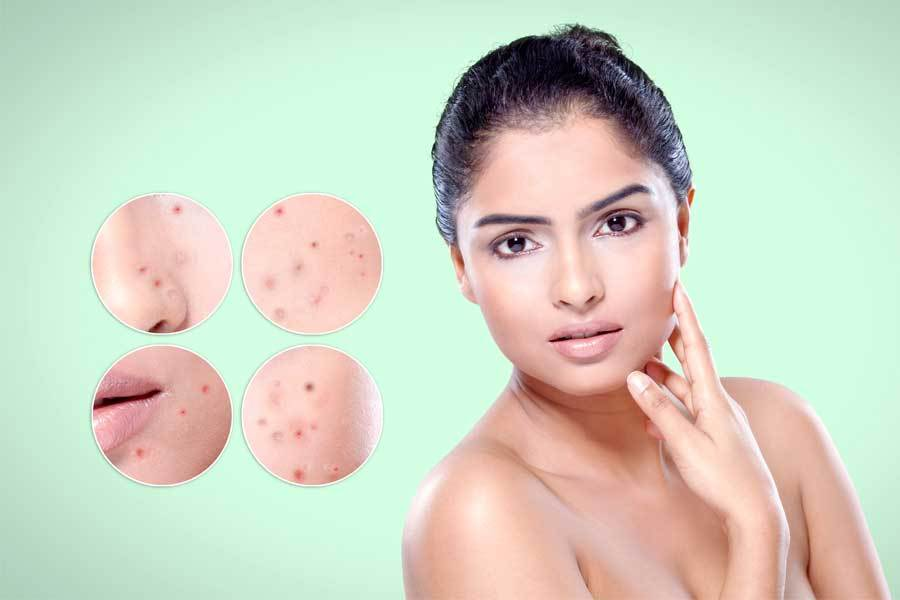 Striking Effects with Skin Whitening