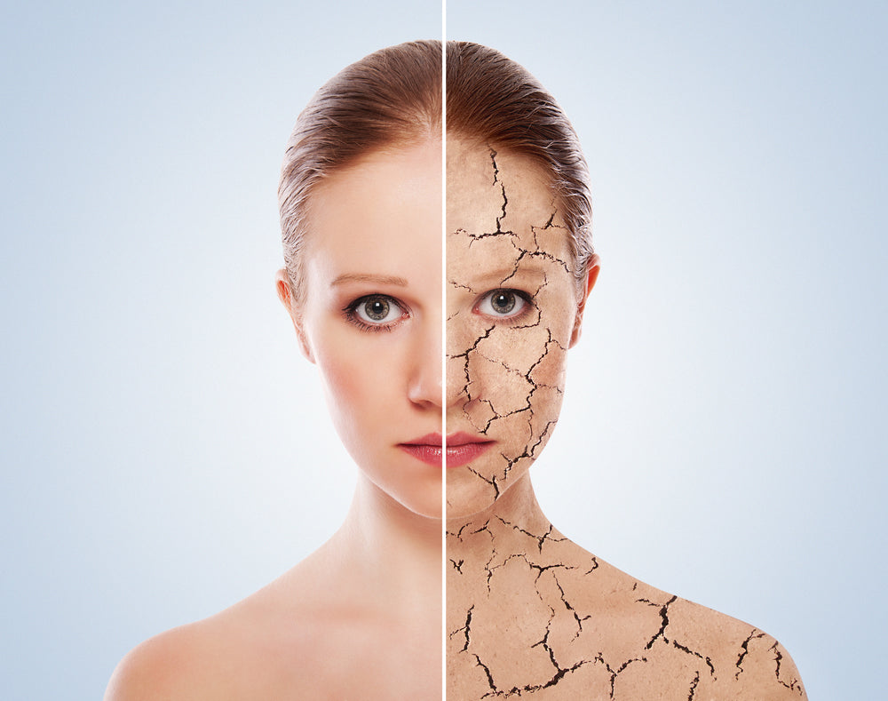 dry patch on face home remedy