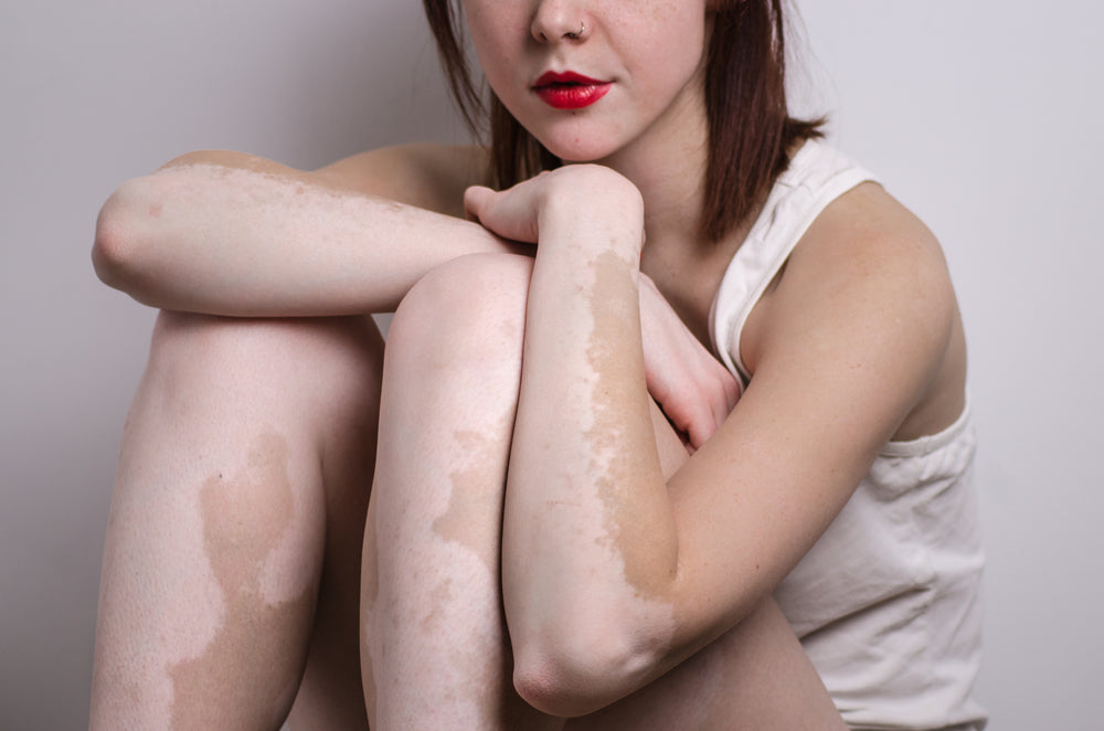 Causes and Treatment for a White Spot on Skin – Fair and Flawless