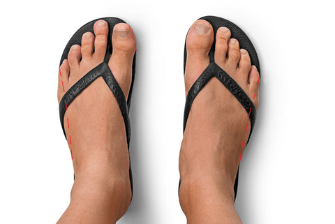 Archies Arch Support Thongs Flip Flops Top view of overhang