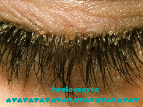cc5f040976b If there are ANY signs of blepharitis, your lash artist will want to remove  all remaining extensions and perform a deep cleaning.