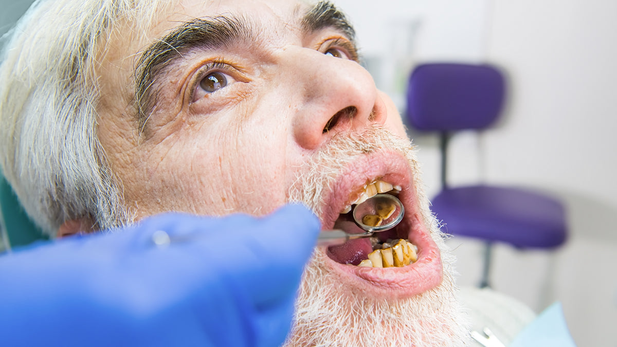 old man, unhealthy mouth, yellow teeth, protect enamel, dentistry
