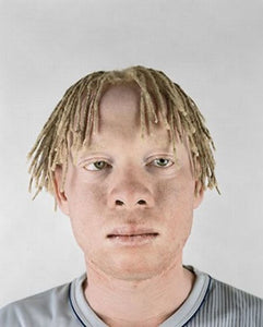 Albino Noah And The Curse Of Black Skin