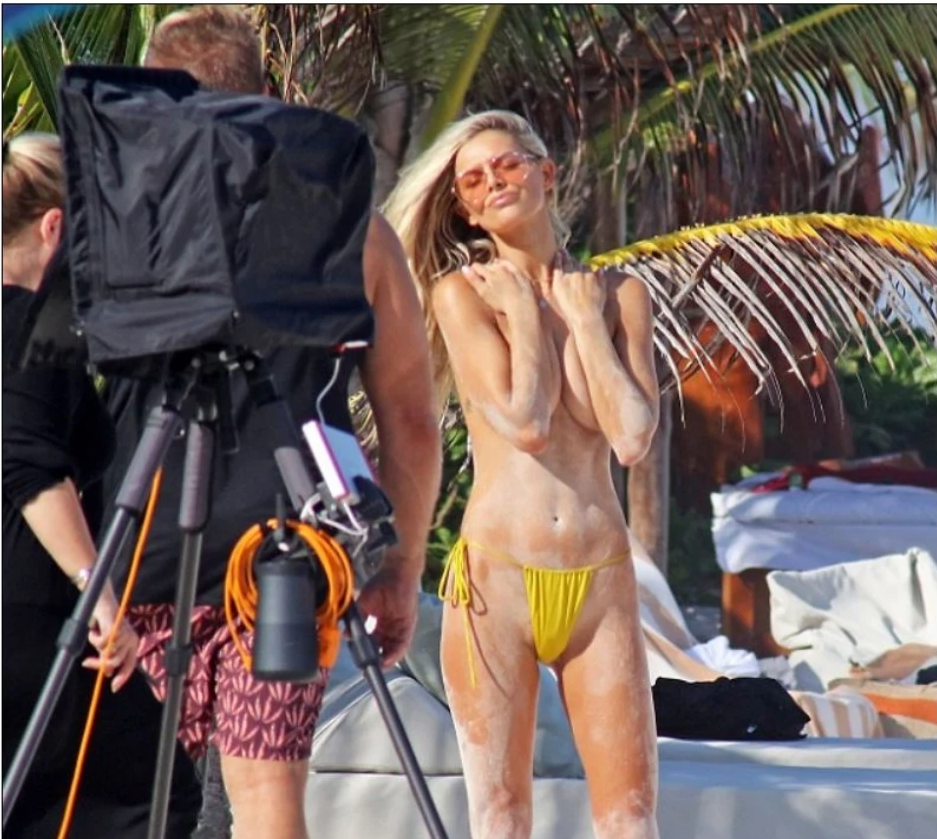 Daily Mail runs article on model Danielle Knudson photographed wearing Monica Hansen Beachwear