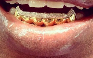 Custom Made 14k Gold Overlay Removable Grillz Teeth /Gold Plate Caps/ 6 Teeth Top or Bottom Fangs/4