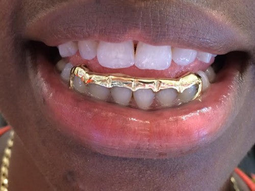 Custom Made 14k Gold Overlay Removable Grillz Teeth /Gold Plate Caps/ 6 Teeth Top or Bottom Fangs/2