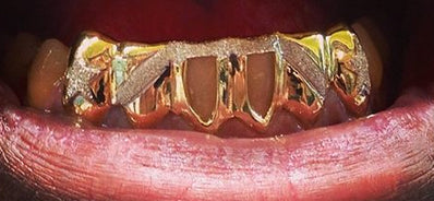 Custom Made 14k Gold Overlay Removable Grillz Teeth /Gold Plate Caps/ 6 Teeth Top or Bottom Fangs/7