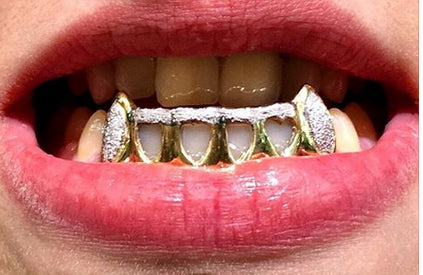 Custom Made 14k Gold Overlay Removable Grillz Teeth /Gold Plate Caps/ 6 Teeth Top or Bottom Fangs/9