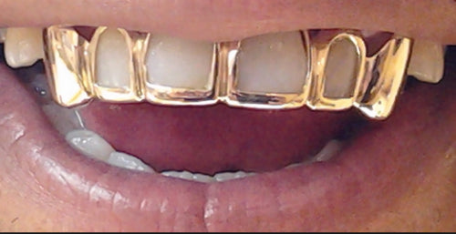 Custom Made 14k Gold Overlay Removable Grillz Teeth /Gold Plate Caps/ 6 Teeth Top or Bottom Fangs/5