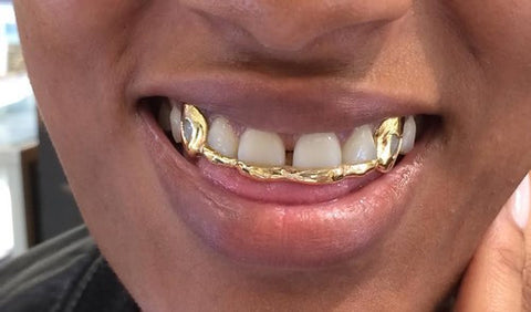 Custom Made 14k Gold Overlay Removable Grillz Teeth /Gold Plate Caps/ 6 Teeth Top or Bottom Fangs/11