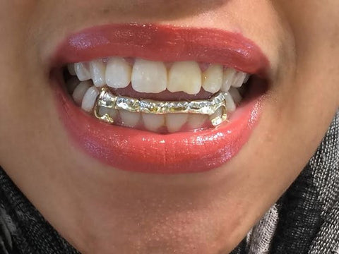 Custom Made 14k Gold Overlay Removable Grillz Teeth /Gold Plate Caps/ 6 Teeth Top or Bottom Fangs/12