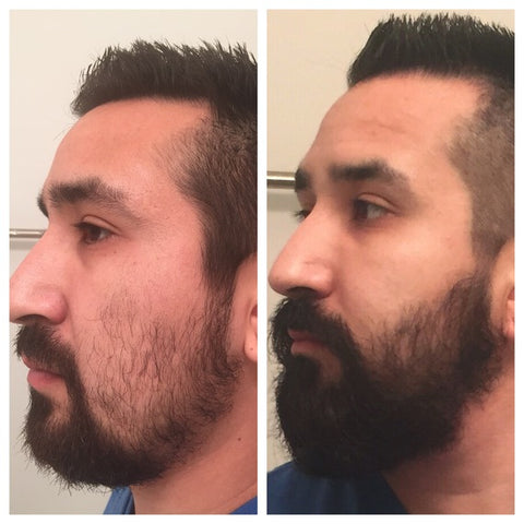 How To Make Beard Grow Faster
