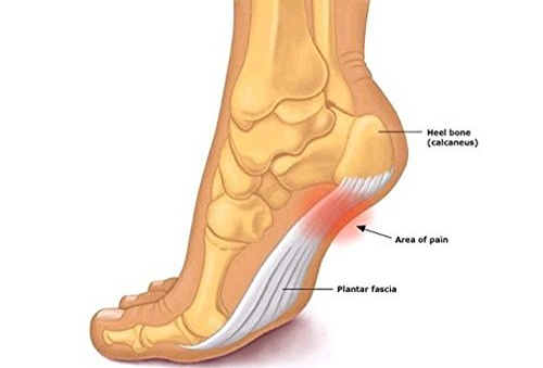 Cold therapy treatment for plantar fasciitis