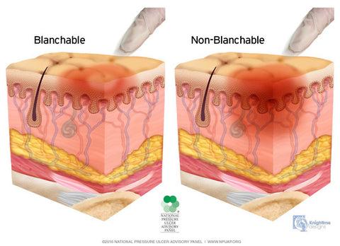 Blanchable vs non blanchable pressure ulcers