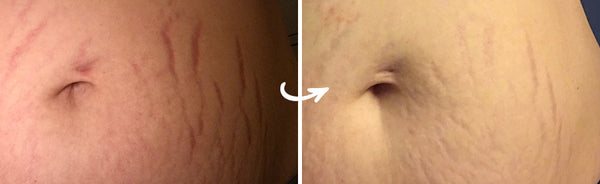 Before and After Results of Dermaclara Clarafuse