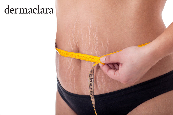 Most Effective Treatment For Pregnancy Stretch Marks