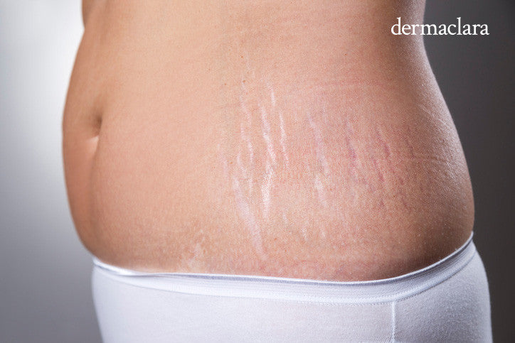 best stretch mark product