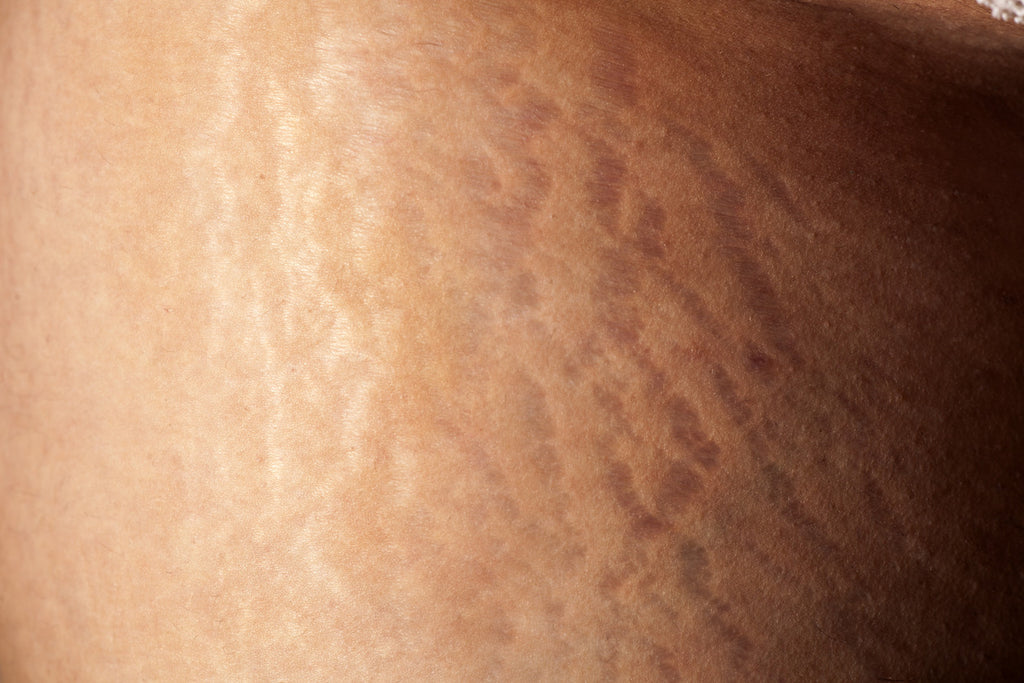 how are stretch marks on women formed