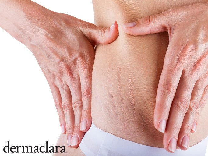 how common are stretch marks on women