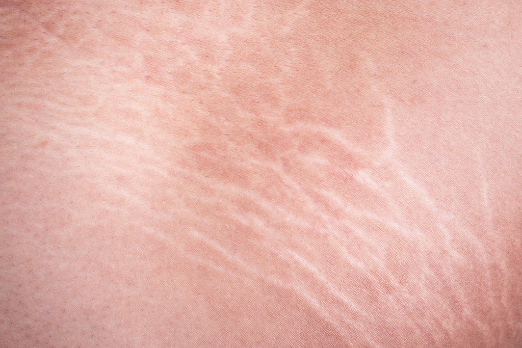 how to prevent stretch marks