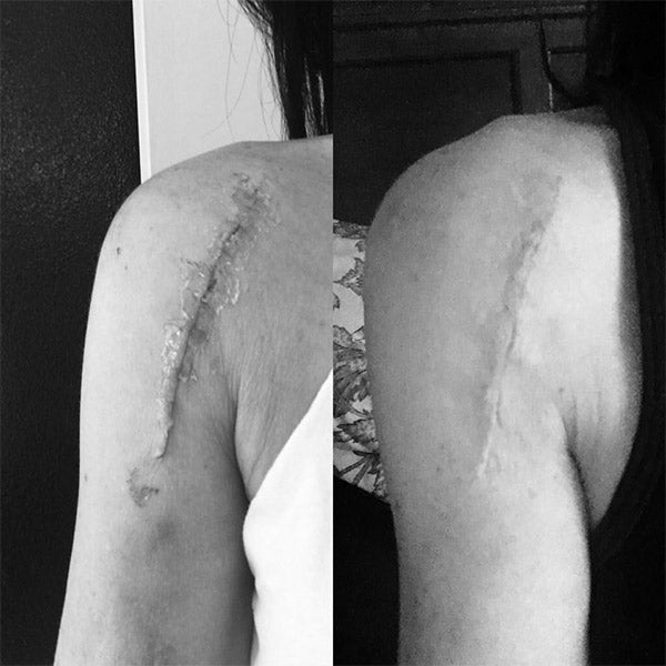 scar before & after