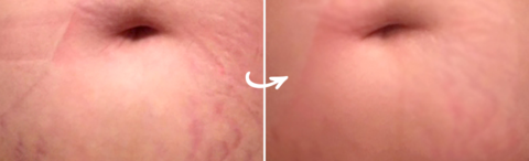 How to Repair Stretch Marks with Silicone Sheets