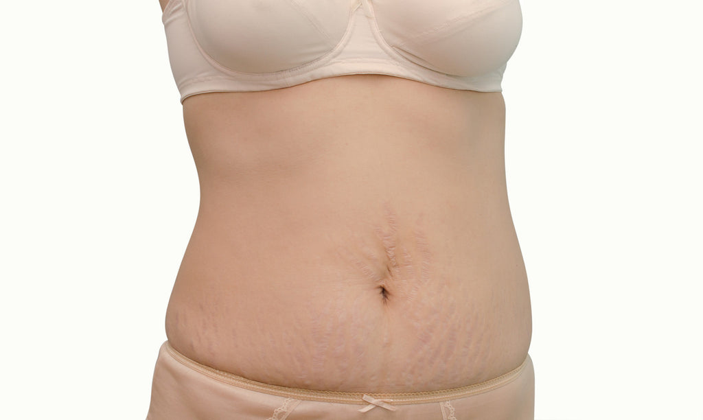 what's different about different color stretch marks?