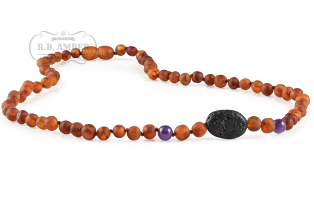 Baltic Amber Aromatherapy Necklace for Adults 1
