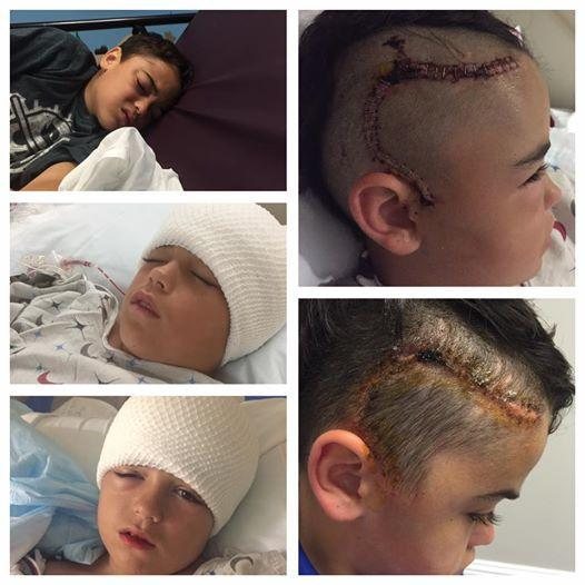 Mum Warns Parents About The Importance Of Helmets After Fall Almost Killed Son