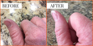 Before and After Photo and Testimonial | Liquid Skin Salve for Dry Skin