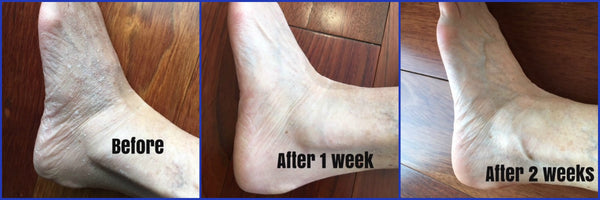 Before and After Photo and Testimonial | Liquid Skin Salve for Feet