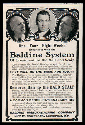 Baldness Cure AD 1902 Baldine System Restores Hair Photo Proof Quack Medicine AD