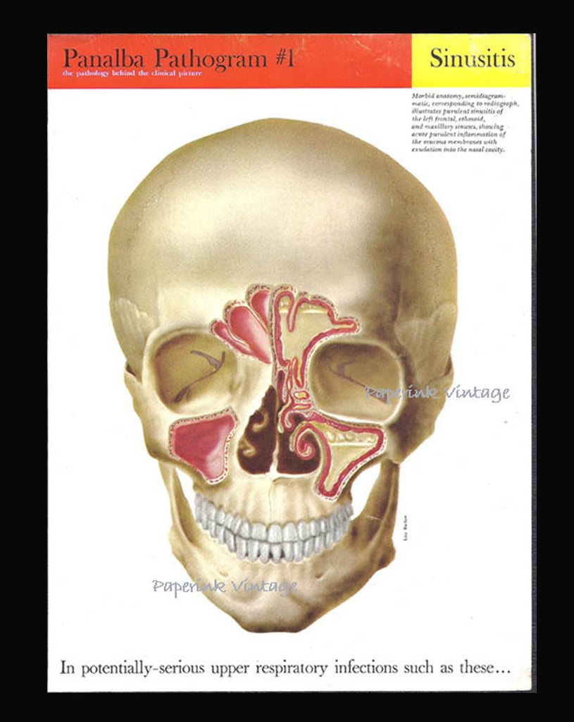 Skull Anatomy 1958 Medical Diagram Lou Barlow Artist Jaw Teeth ...