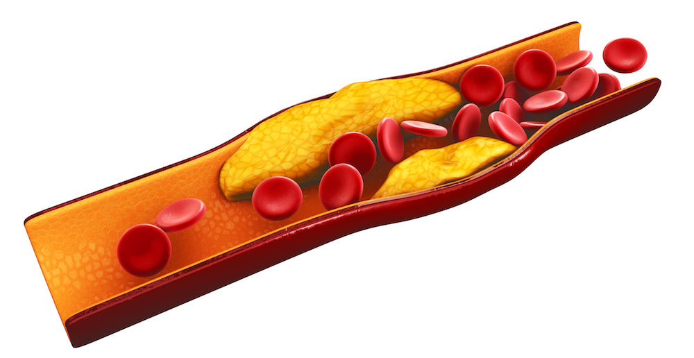Graphic of bloodstream with cholesterol build up