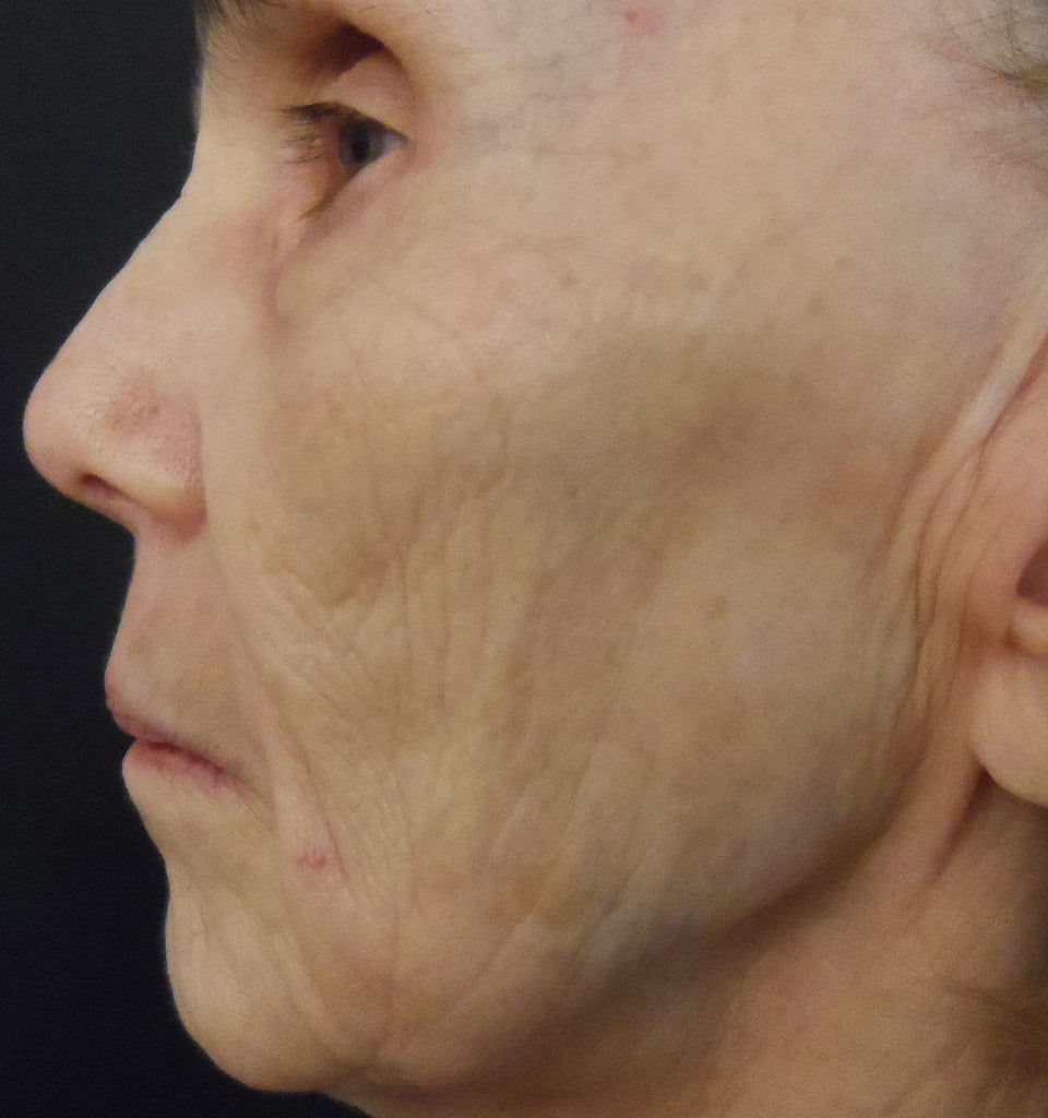 74 Year Old After 4 Sessions