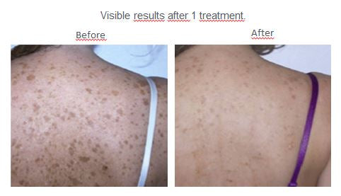 IPL-Anthelia-Adena-Dark-pigment-spot-treatment