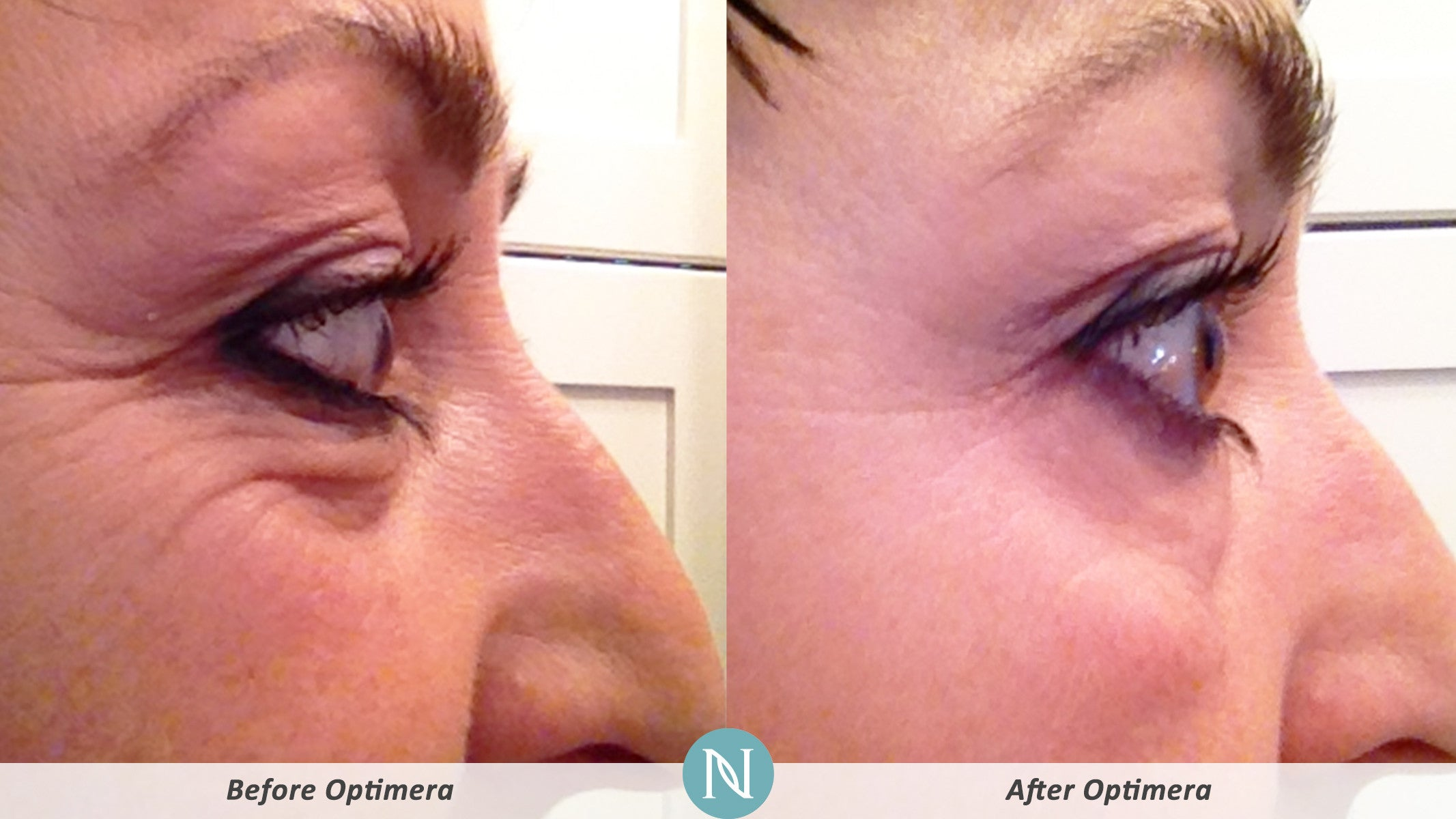 nerium-skin-care-results-1