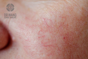Diagnostics of Skincare Issues, the Organs that are Affected (Eczema and Rosacea)