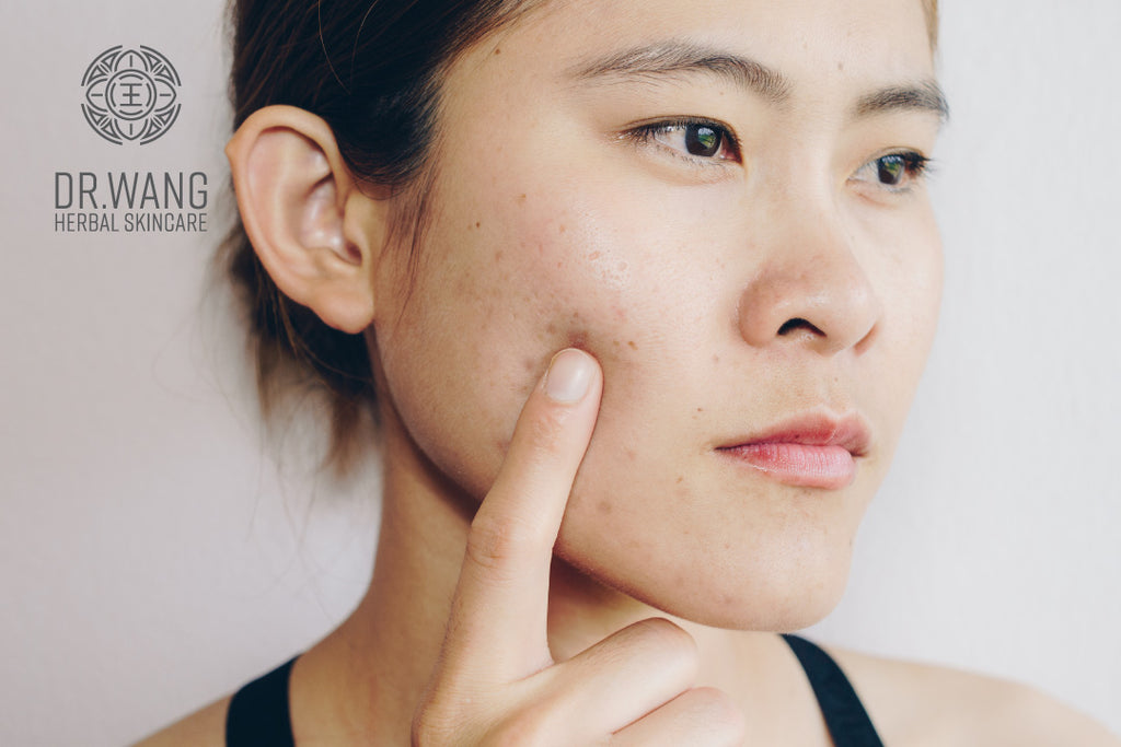 Top 6 Ways to Avoid Breakouts