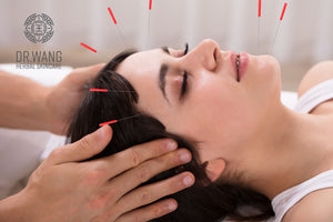 Benefits of Facial Acupuncture for Anti-Aging