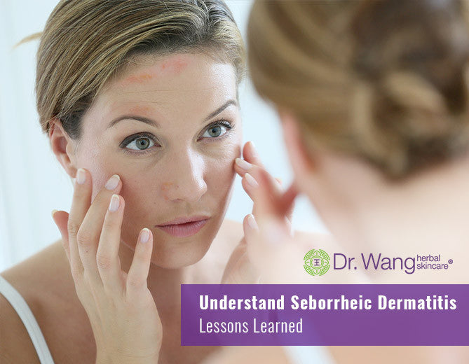 Understand Seborrheic Dermatitis (Seb Derm) – Treatment & Natural Care Options