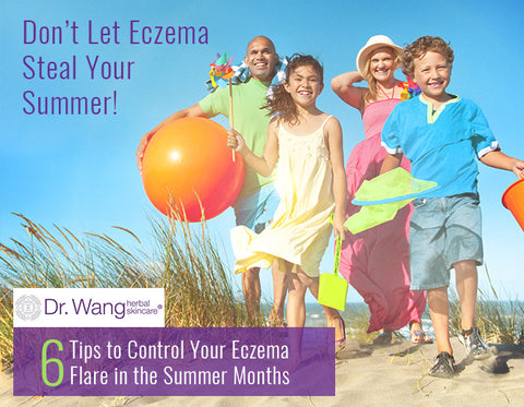 tips to Prevent Eczema Flare in the summer