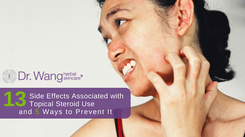 Top 13 Side Effects Associated With Topical Steroid Use + 5 Ways to Prevent It