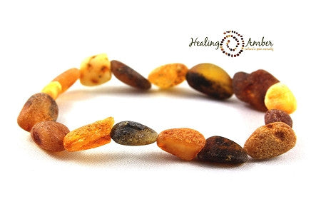 "Baltic Amber 20"" Adult Necklace"