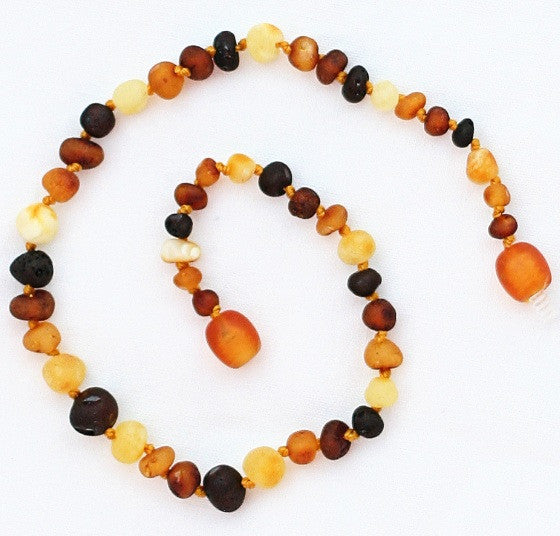 "Baltic Amber 11"" Necklace"