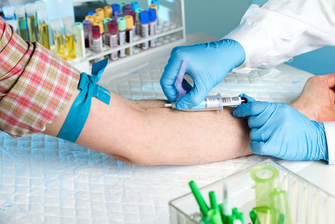 Comprehensive Metabolic Blood Test