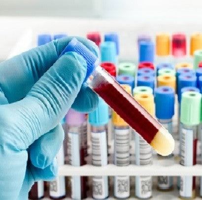 Cholesterol Blood Test Online Without Health Insurance Or Doctor Online