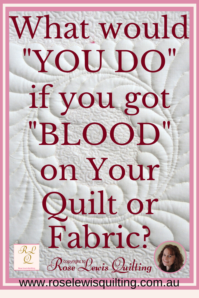 What Would You Do if You Got Blood on Your Quilt, Fabric or Sewing that  you were working on?