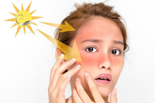The effect of sun exposure on acne prone skin