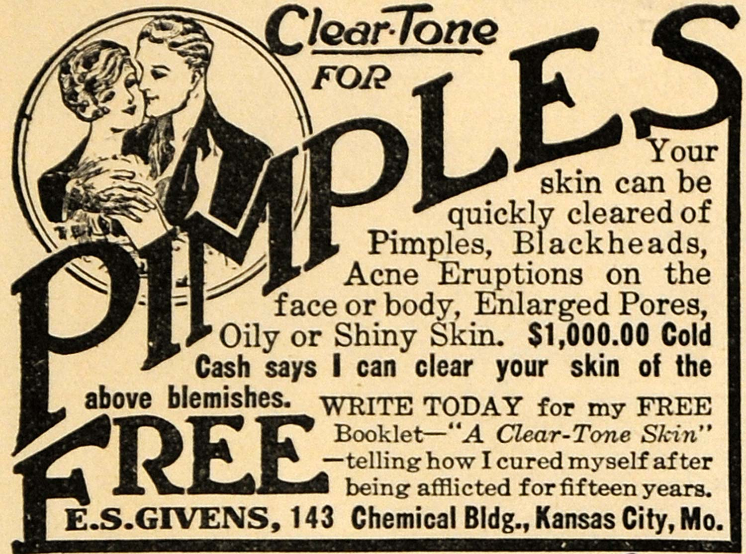 1923 Ad E. S. Givens Pimple Clear Complexion Formula - ORIGINAL ADVERTISING ILW1